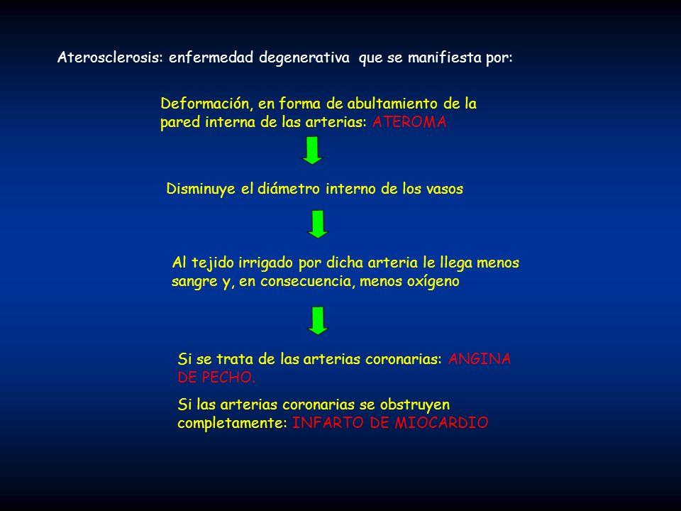 Aterosclerosis: enfermedad degenerativa que se manifiesta por: