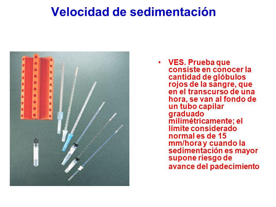 Velocidad de sedimentación