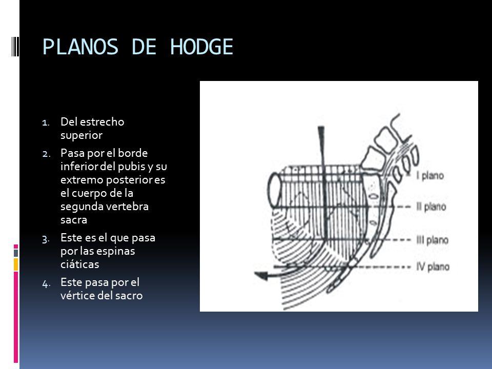 PLANOS DE HODGE Del estrecho superior