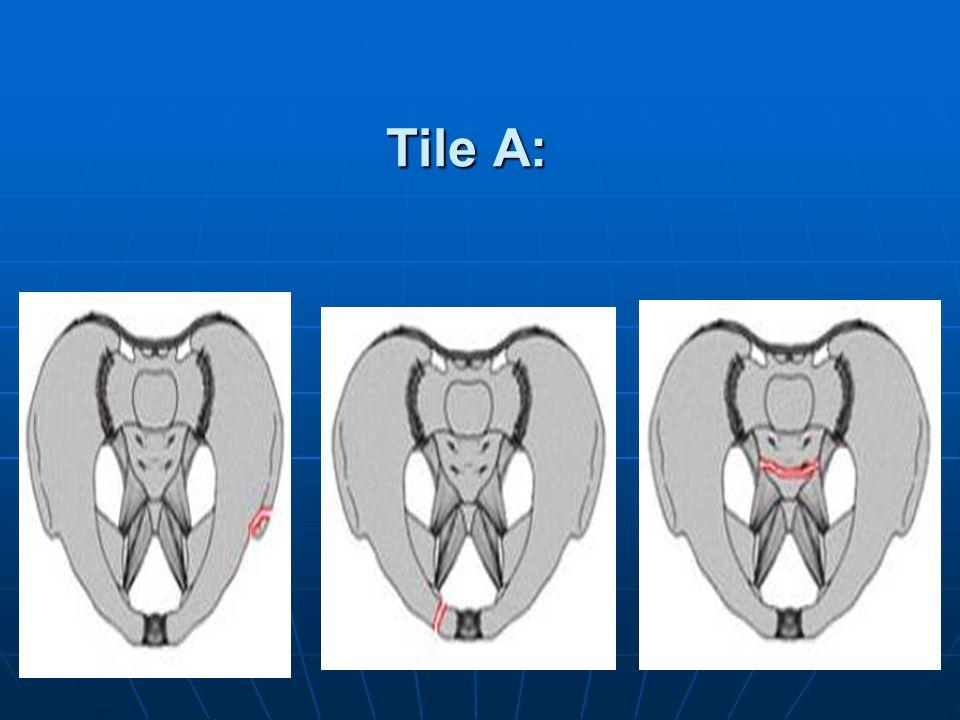 Tile A: Tile A1. Tile A2. Tile A3.