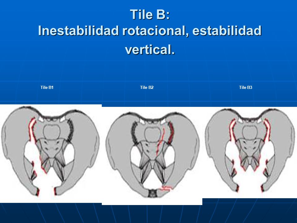 Tile B: Inestabilidad rotacional, estabilidad vertical.