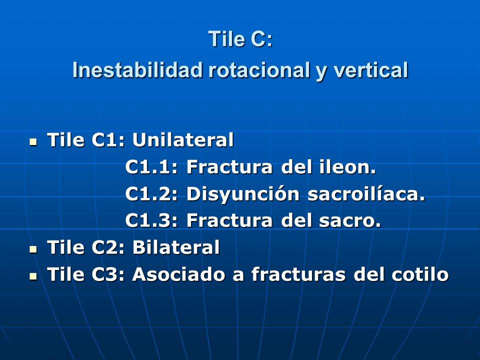 Tile C: Inestabilidad rotacional y vertical