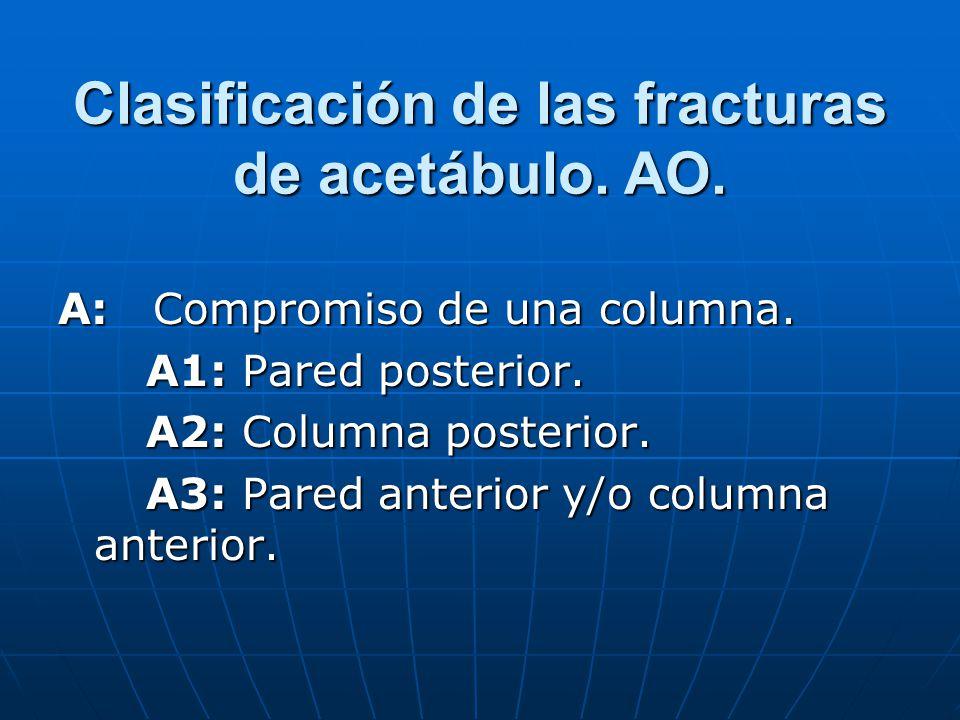 Clasificación de las fracturas de acetábulo. AO.
