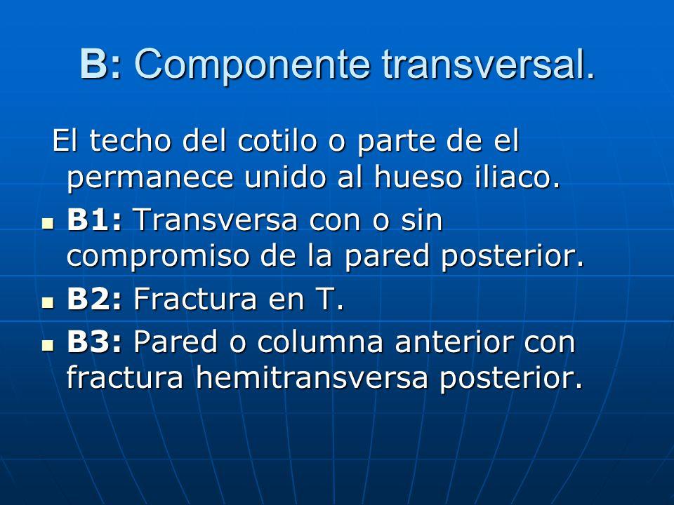 B: Componente transversal.