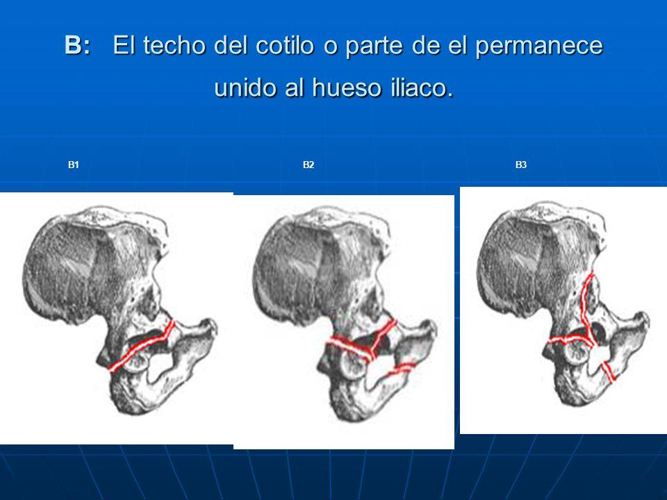 B: El techo del cotilo o parte de el permanece unido al hueso iliaco.