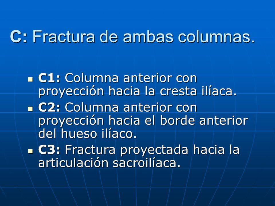 C: Fractura de ambas columnas.