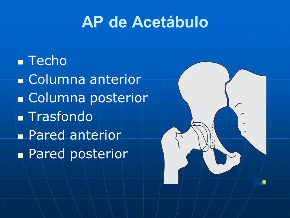 AP de Acetábulo Techo Columna anterior Columna posterior Trasfondo