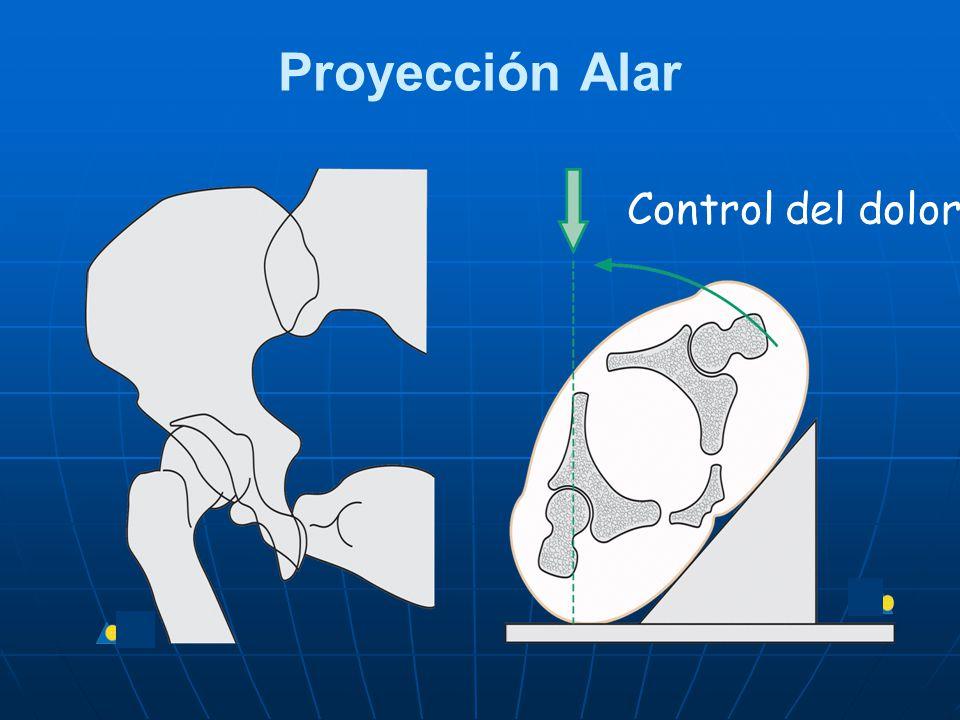 Proyección Alar Control del dolor