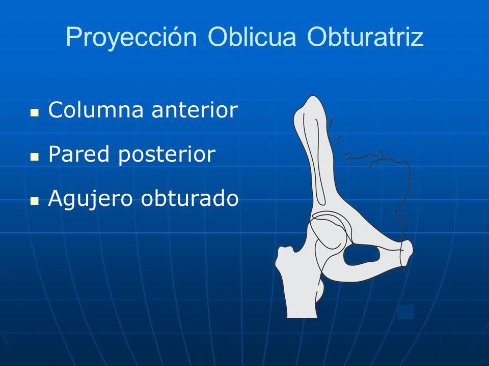 Proyección Oblicua Obturatriz