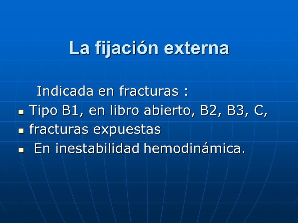 La fijación externa Indicada en fracturas :
