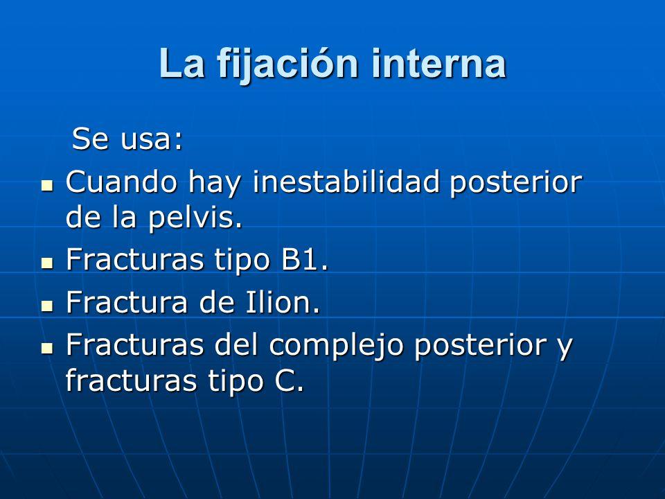 La fijación interna Se usa: