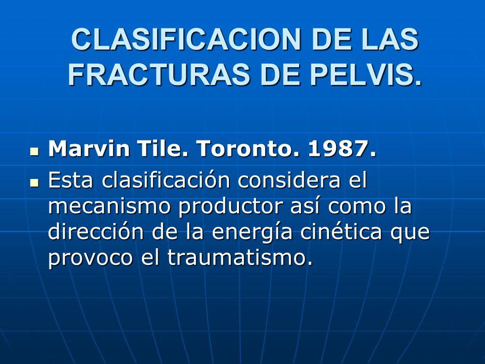 CLASIFICACION DE LAS FRACTURAS DE PELVIS.