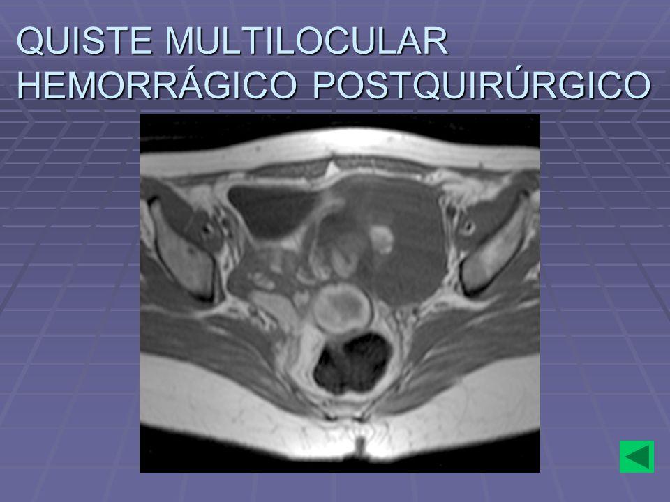 QUISTE MULTILOCULAR HEMORRÁGICO POSTQUIRÚRGICO