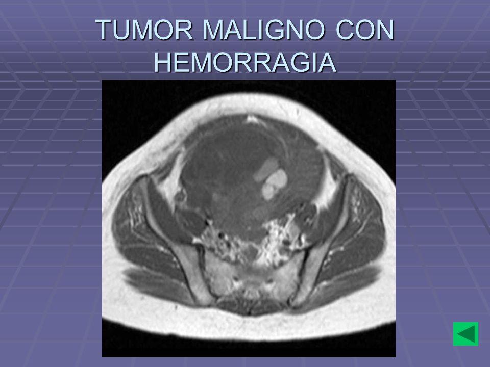 TUMOR MALIGNO CON HEMORRAGIA