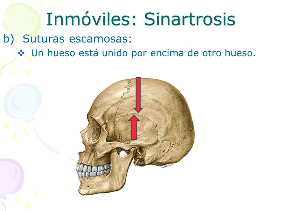 Inmóviles: Sinartrosis