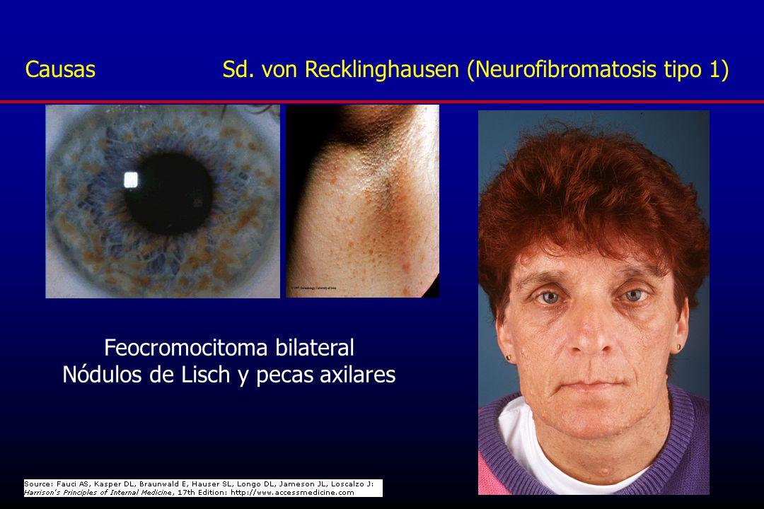 Causas Sd. von Recklinghausen (Neurofibromatosis tipo 1)