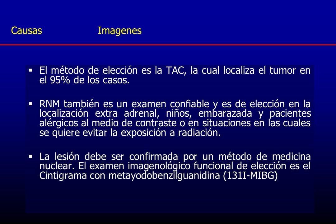 Causas Imagenes El método de elección es la TAC, la cual localiza el tumor en el 95% de los casos.