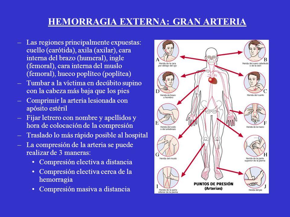 HEMORRAGIA EXTERNA: GRAN ARTERIA