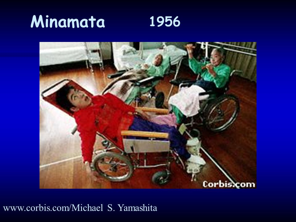 Minamata 1956 www.corbis.com/Michael S. Yamashita