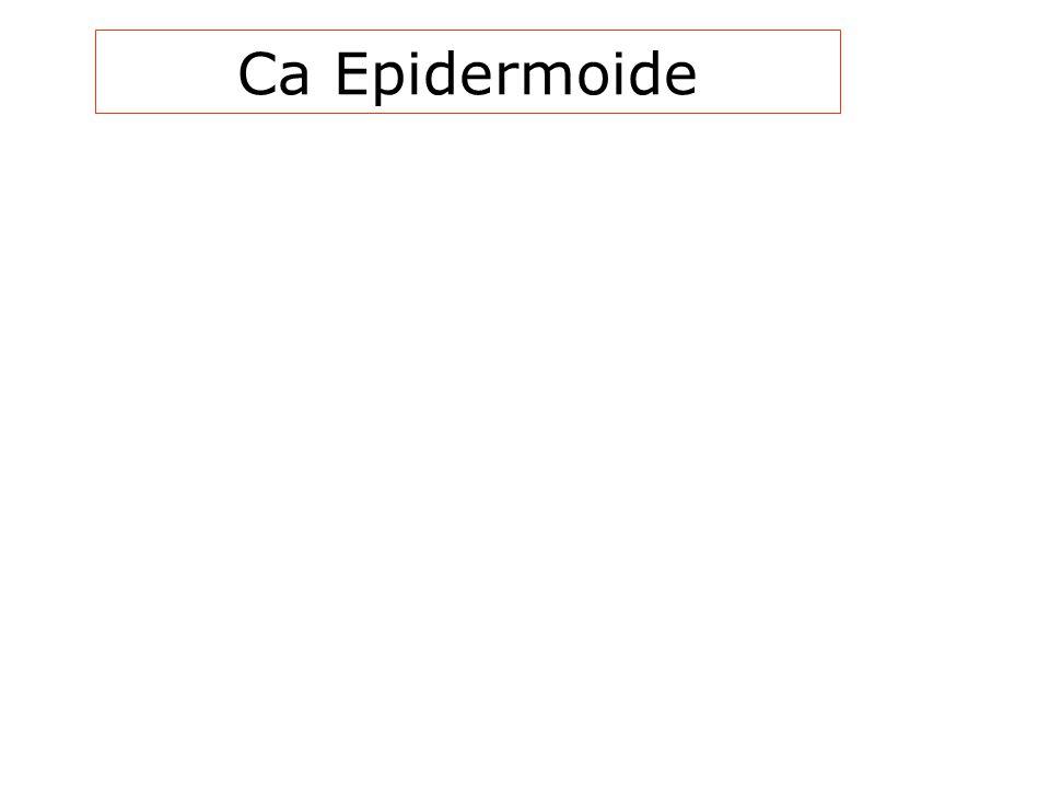 Ca Epidermoide