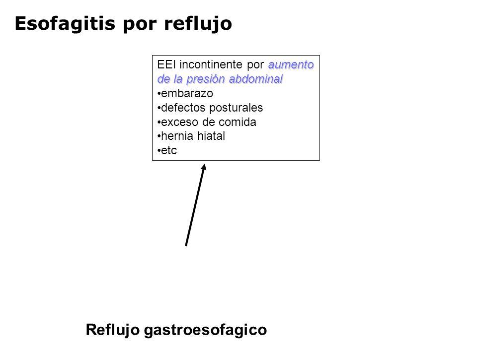 Esofagitis por reflujo