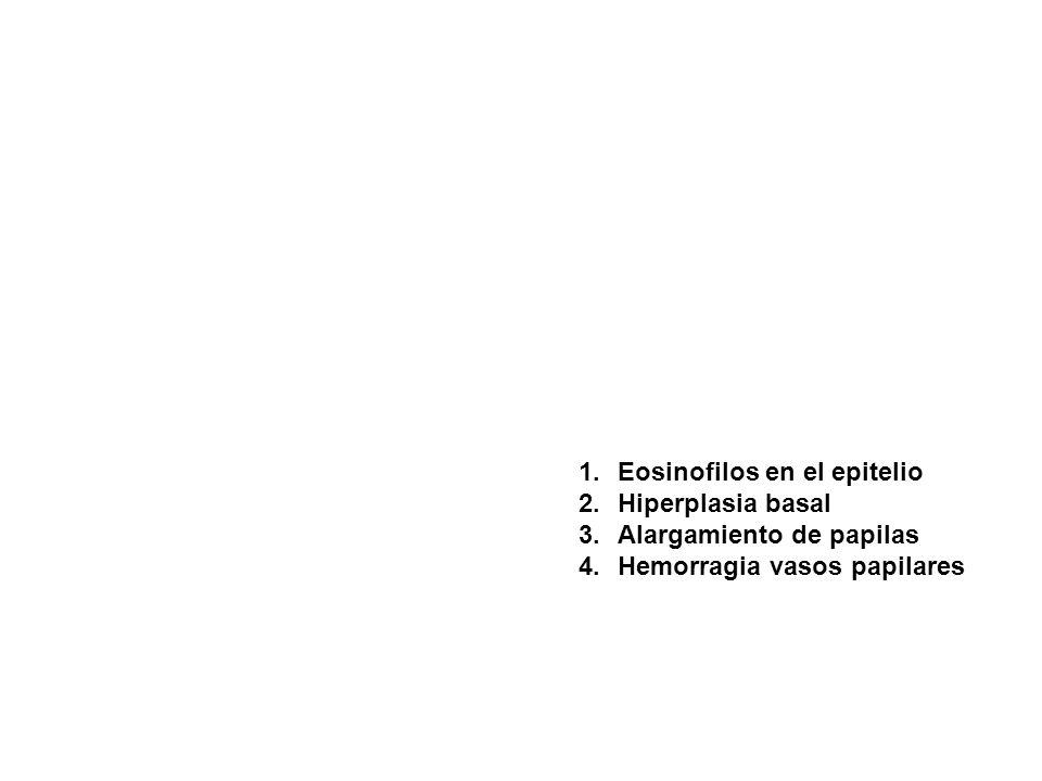 Eosinofilos en el epitelio
