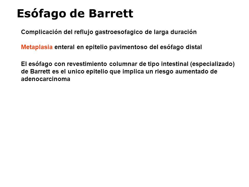 Esófago de Barrett Complicación del reflujo gastroesofagico de larga duración. Metaplasia enteral en epitelio pavimentoso del esófago distal.
