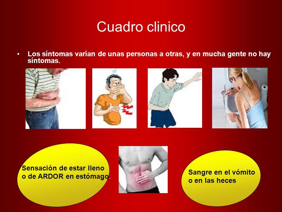 Cuadro clinico Los síntomas varían de unas personas a otras, y en mucha gente no hay síntomas. Sensación de estar lleno.
