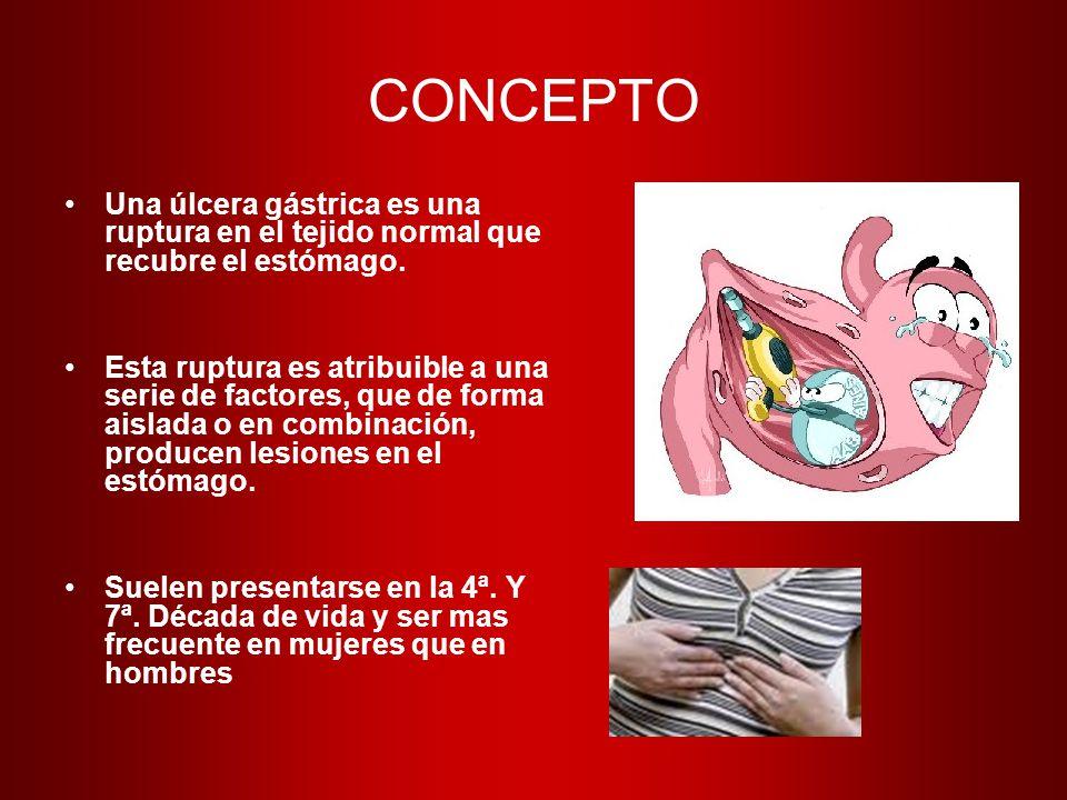CONCEPTO Una úlcera gástrica es una ruptura en el tejido normal que recubre el estómago.
