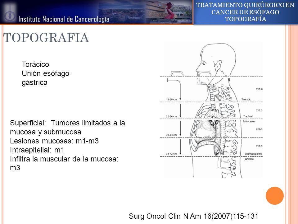 TRATAMIENTO QUIRÚRGICO EN CANCER DE ESÓFAGO