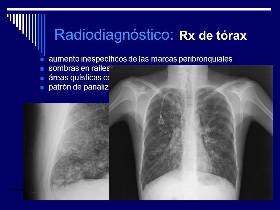 Radiodiagnóstico: Rx de tórax