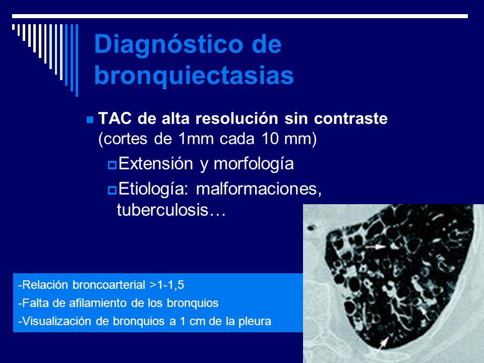 Diagnóstico de bronquiectasias