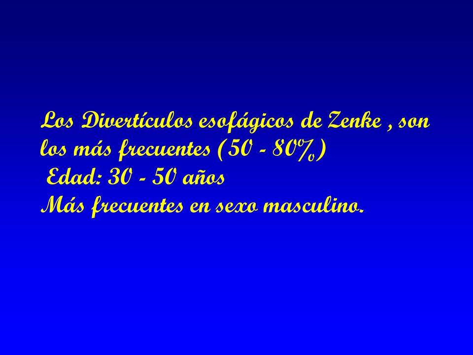 Los Divertículos esofágicos de Zenke , son los más frecuentes (50 - 80%) Edad: 30 - 50 años Más frecuentes en sexo masculino.