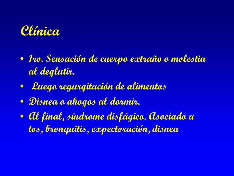 Clínica 1ro. Sensación de cuerpo extraño o molestia al deglutir.