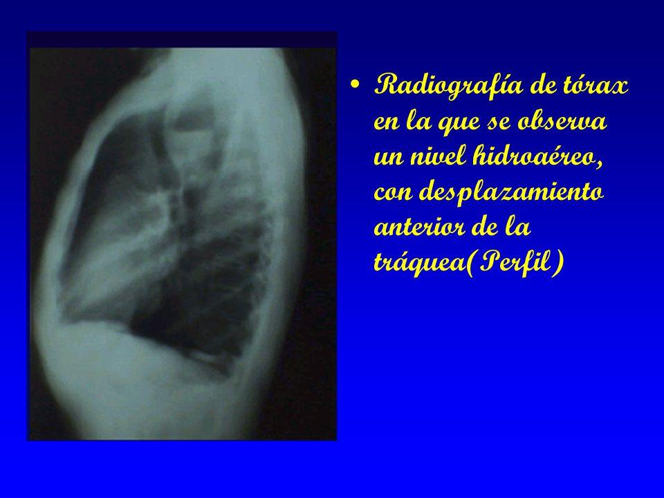 Radiografía de tórax en la que se observa un nivel hidroaéreo, con desplazamiento anterior de la tráquea(Perfil)