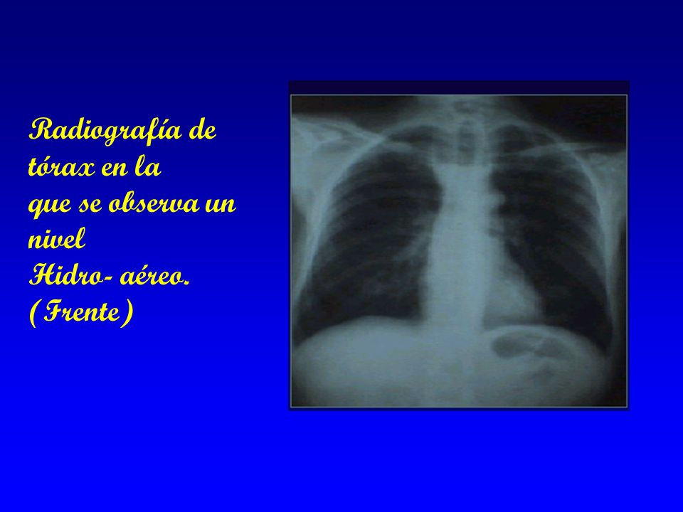Radiografía de tórax en la