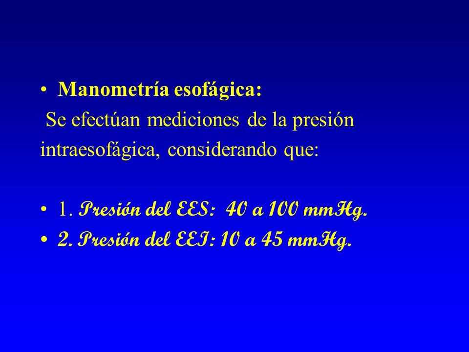Manometría esofágica: