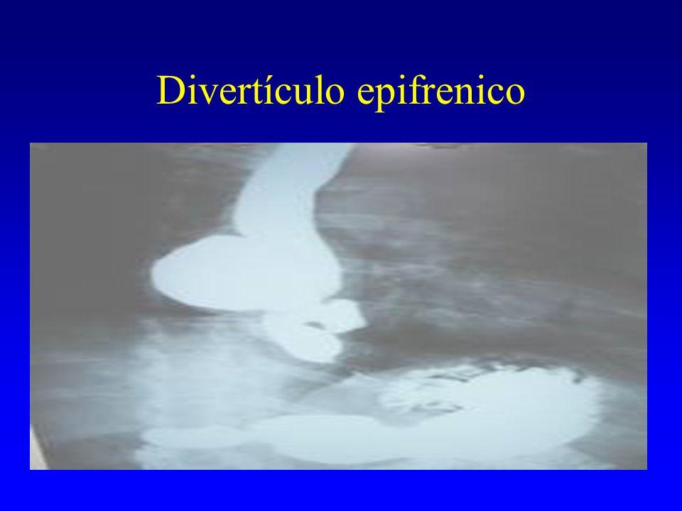 Divertículo epifrenico