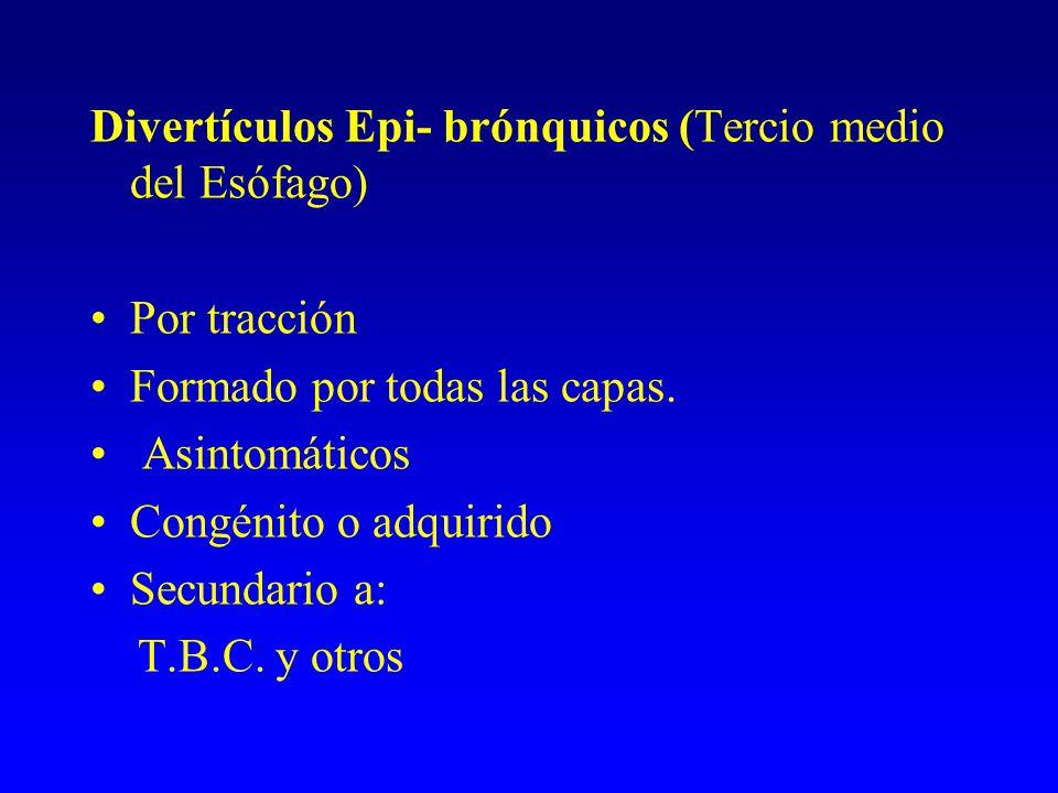 Divertículos Epi- brónquicos (Tercio medio del Esófago)