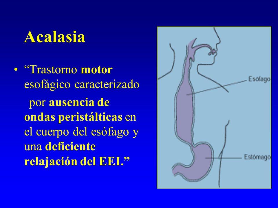 Acalasia Trastorno motor esofágico caracterizado