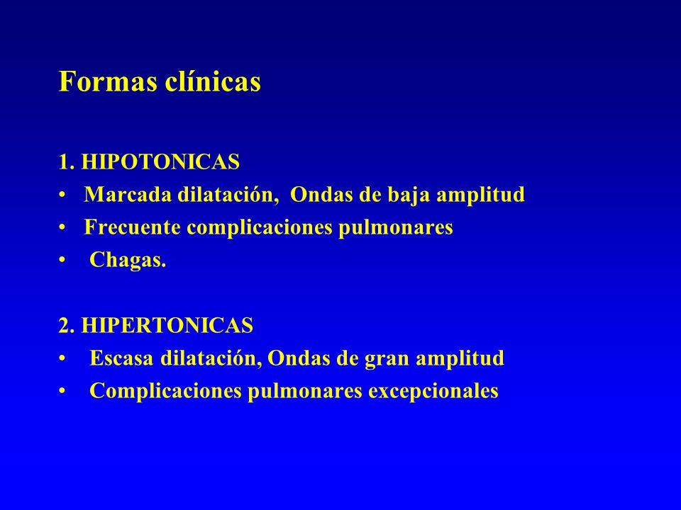 Formas clínicas 1. HIPOTONICAS