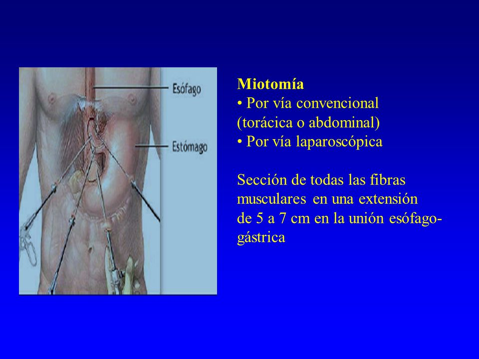 Miotomía • Por vía convencional. (torácica o abdominal) Por vía laparoscópica. Sección de todas las fibras musculares en una extensión.