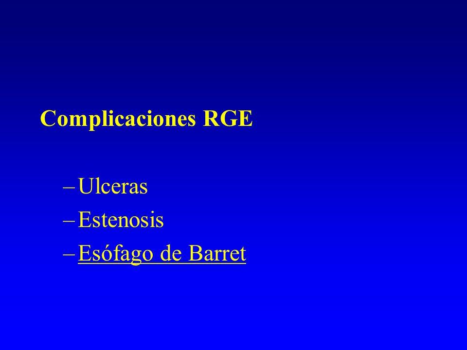 Complicaciones RGE Ulceras Estenosis Esófago de Barret