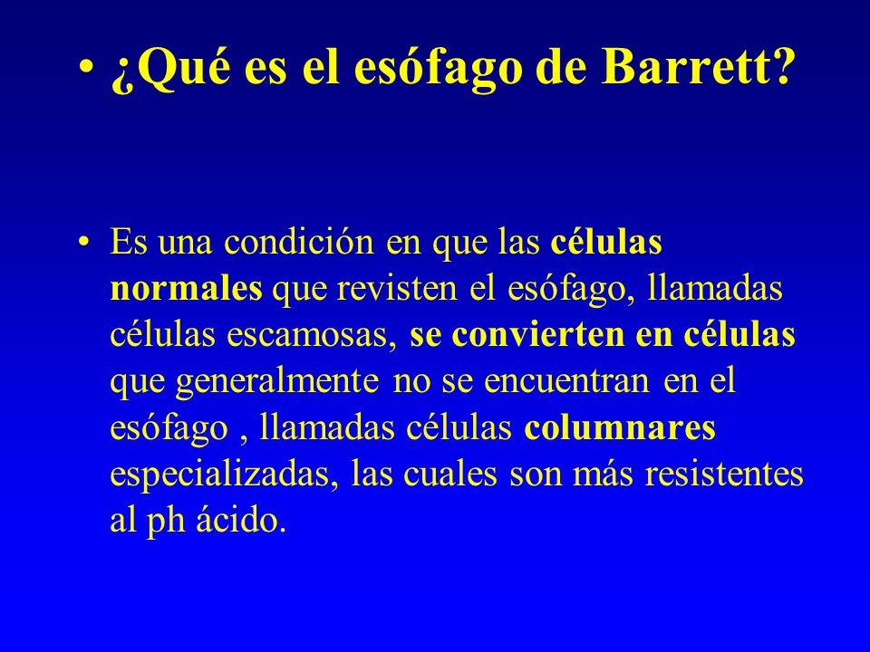 ¿Qué es el esófago de Barrett