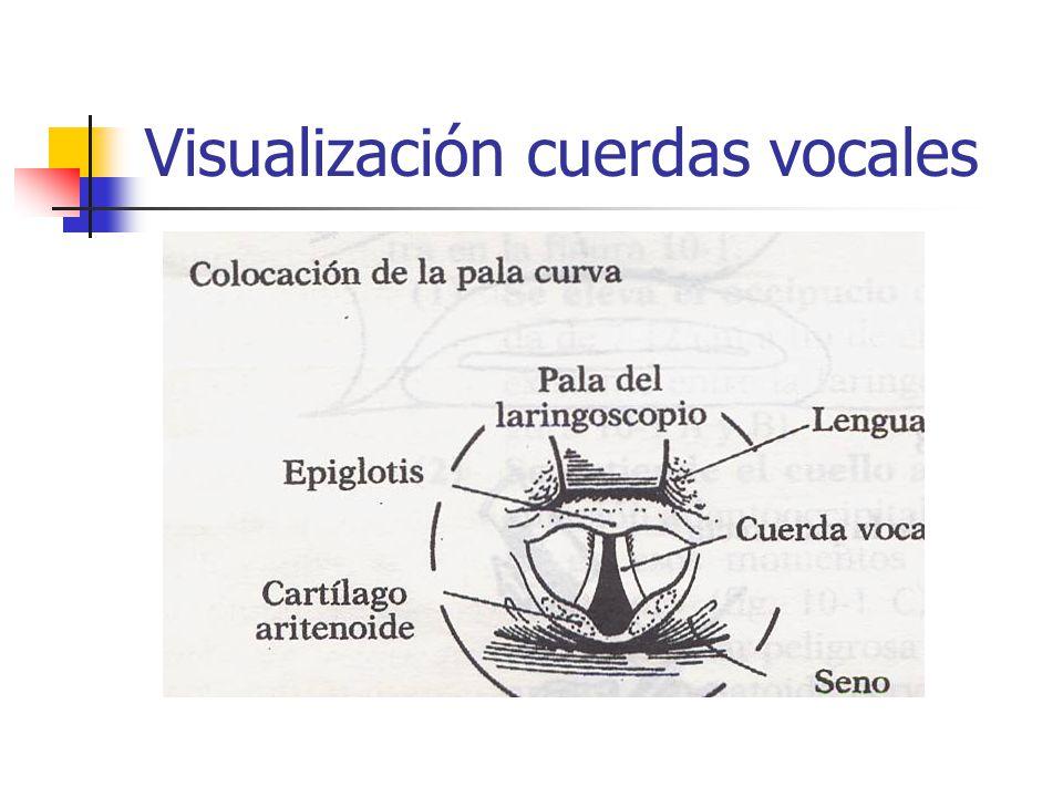Visualización cuerdas vocales