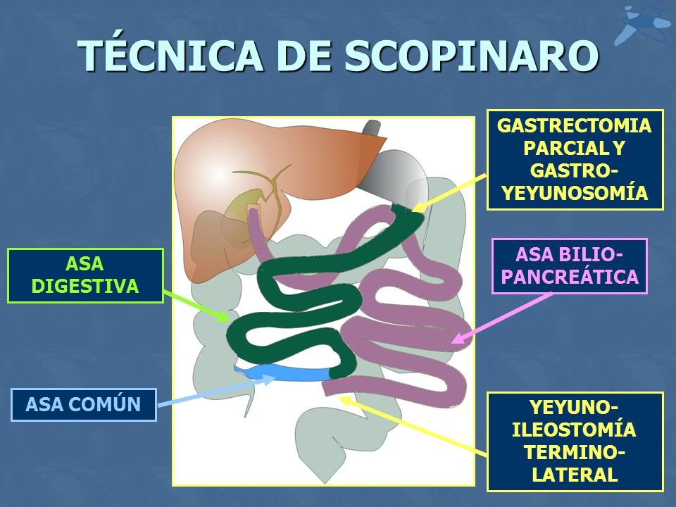 TÉCNICA DE SCOPINARO GASTRECTOMIA PARCIAL Y GASTRO-YEYUNOSOMÍA