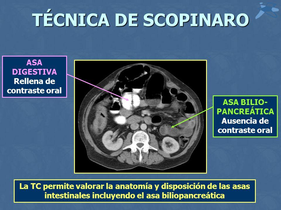 TÉCNICA DE SCOPINARO ASA DIGESTIVA Rellena de contraste oral