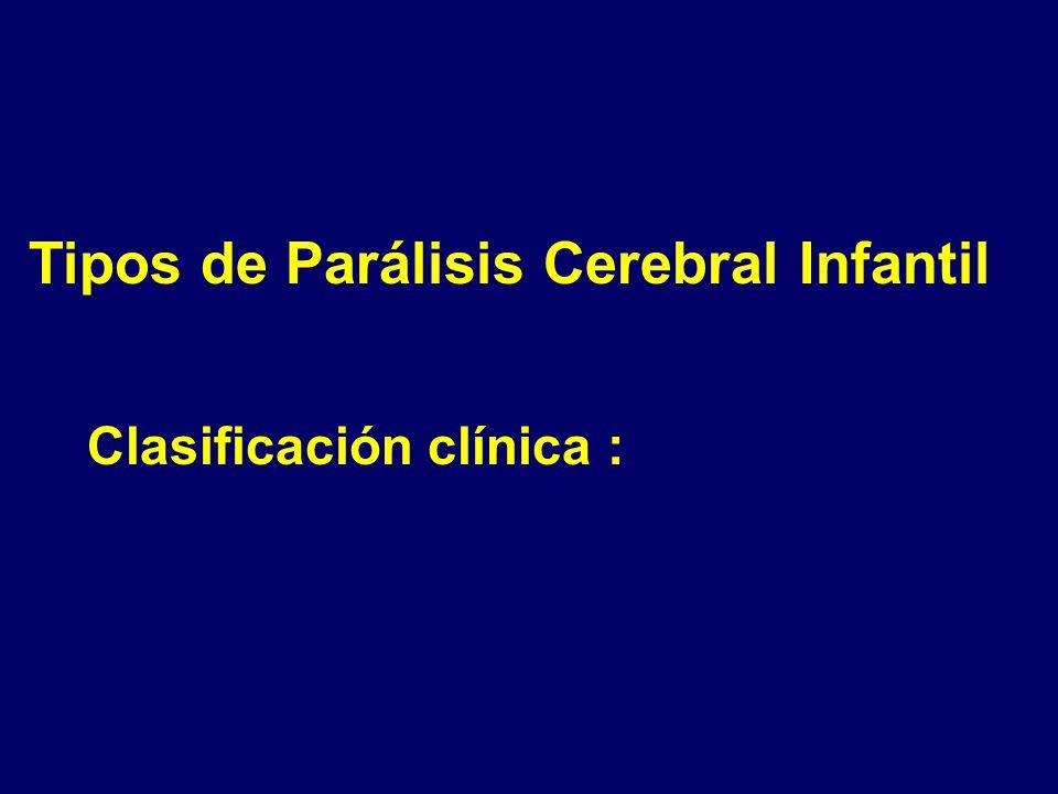 Tipos de Parálisis Cerebral Infantil