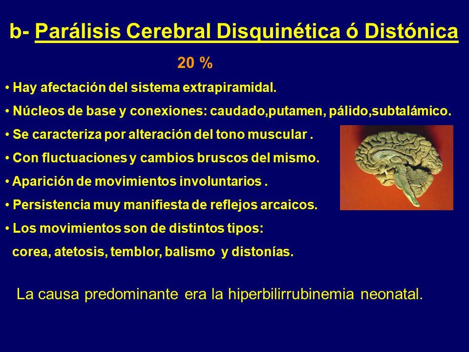 b- Parálisis Cerebral Disquinética ó Distónica 20 %