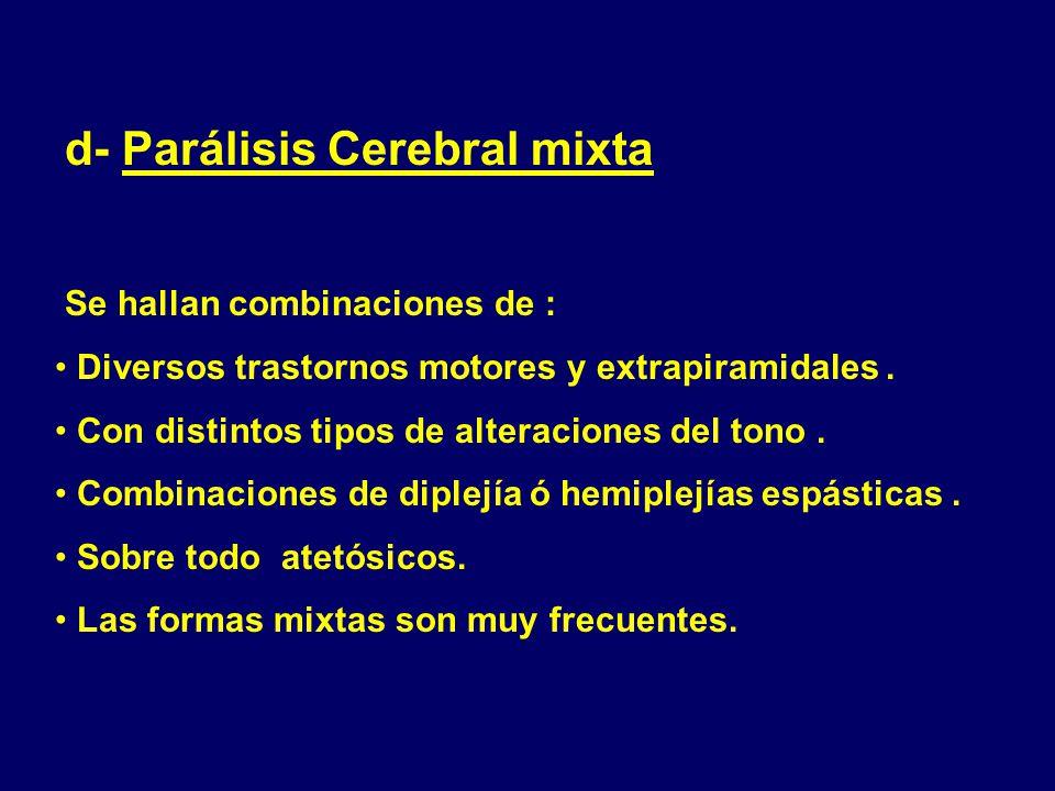d- Parálisis Cerebral mixta
